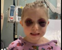 3-Year-Old Miraculously Survives Freak Accident with Horse, Left with Facial Fractures and Brain Injury