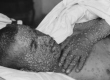Delta Info Leaked:  CDC Says It's More Transmissible Than Smallpox